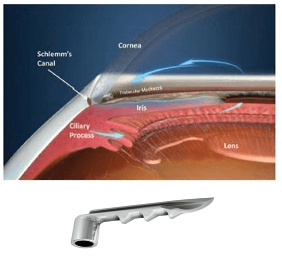 glaucoma fraser valley cataract laser
